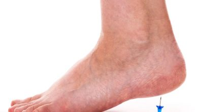 Can Plantar Fasciitis be Completely Cured