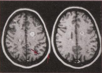Gd-enhanced brain MRI showing areas of BBB leakage in active MS (arrowed)