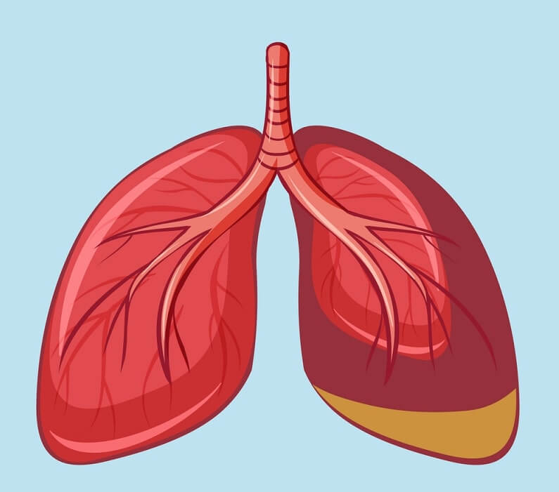 Human Lung with Pleural Mesothelioma