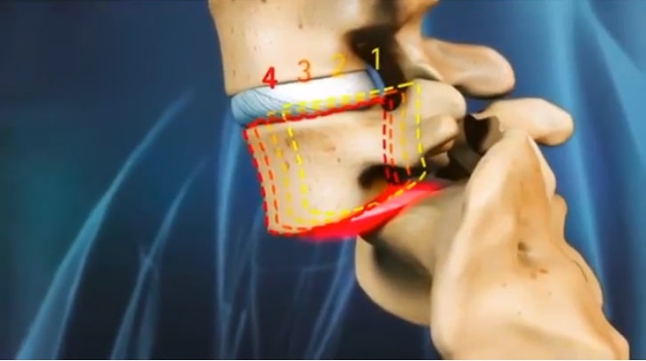 What is Isthmic Spondylolisthesis