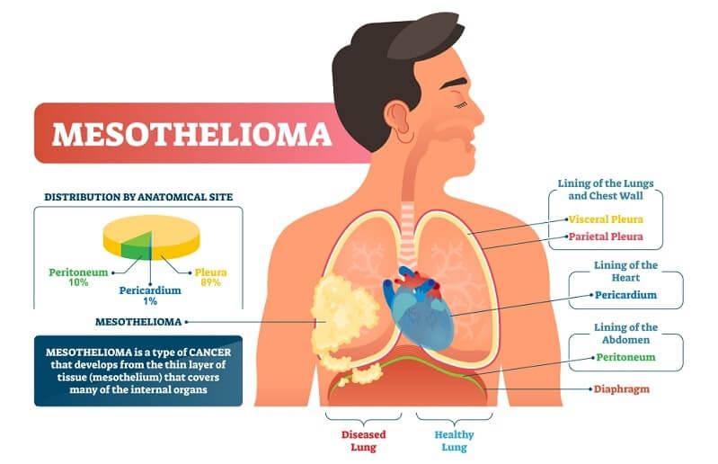 Asbestos illness with peritoneum, pericardium and pleura