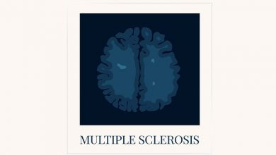 Multiple sclerosis awareness poster with an MRI scan of the brain affected by MS