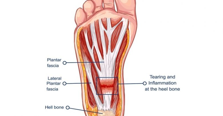 How to manage Plantar Fasciitis