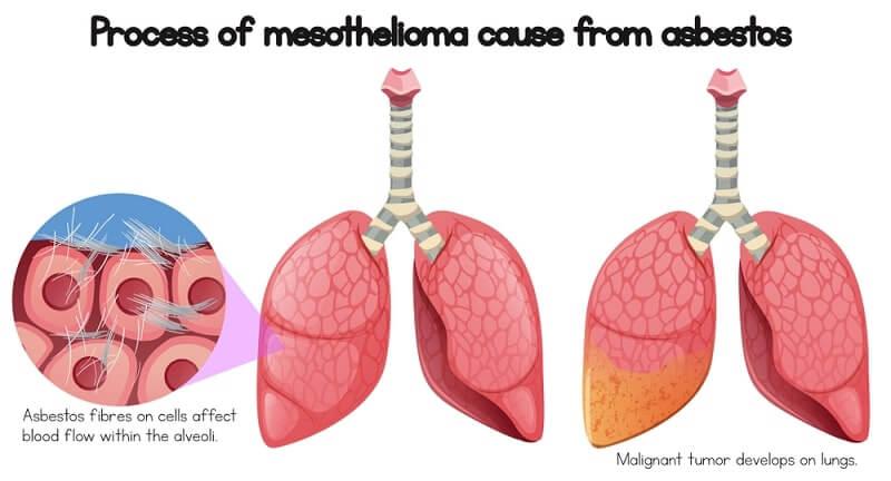 Process of mesothelioma cause of asbestos