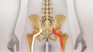 Photo of Managing Sciatic Nerve Pain