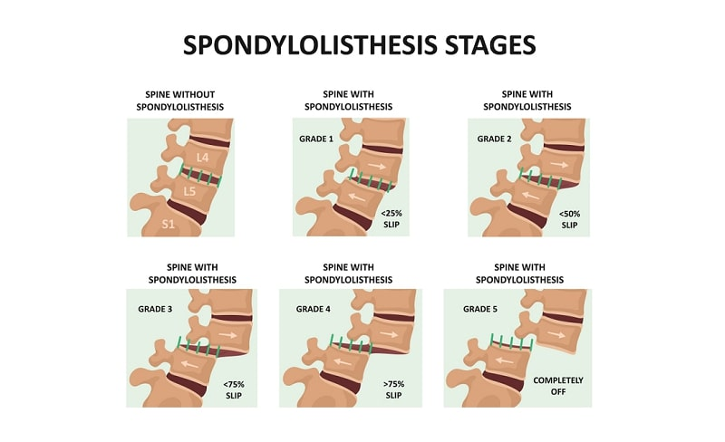 Healthy spine and spine with spondylolisthesis