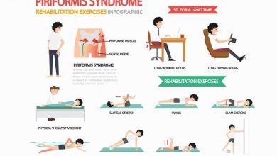 piriformis syndrome rehabilitation exercises