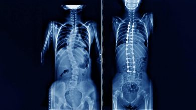 Back Surgery for Scoliosis