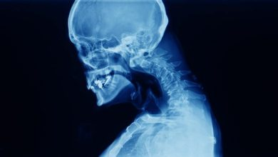 Photo of Spondylosis Fusion
