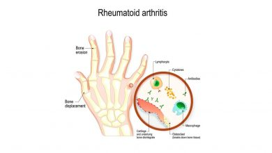 Photo of Rheumatoid Arthritis Surgery Options