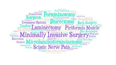 Photo of Sciatic Nerve Treatment Options