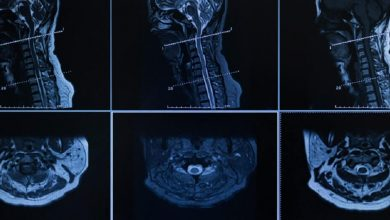Photo of Full Range of Surgical Options for Cervical Spinal Stenosis