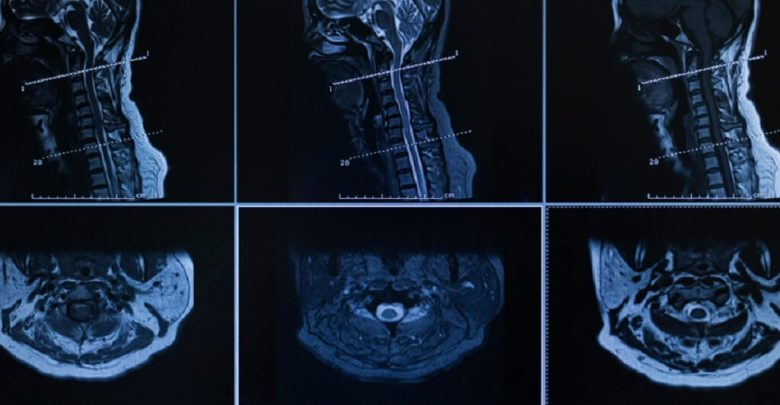 Surgical Options for Cervical Spinal Stenosis