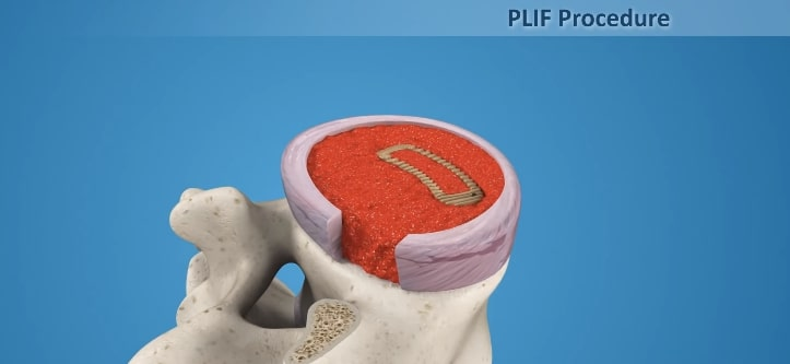 TLIF Procedure