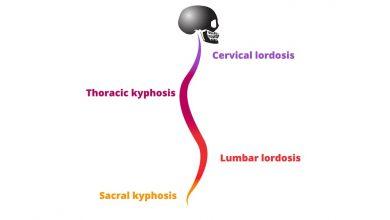 Thoracic Kyphosis