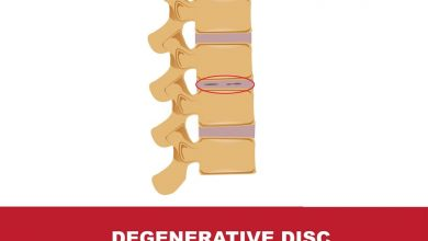 Photo of Back Surgery for Degenerative Disc Disease