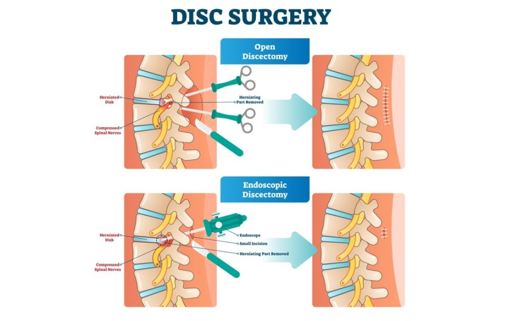 open discectomy and endoscopic discectomy