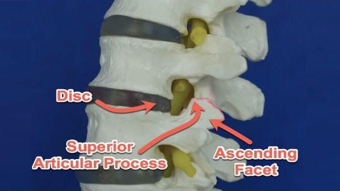 cropped Foraminal Stenosis Back Surgery