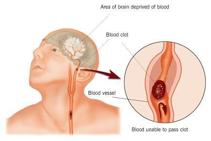 Cerebro Vascular Accident 1