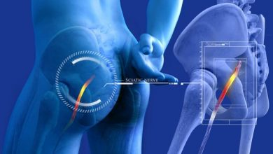 Photo of Is physical therapy good for sciatic nerve pain ?