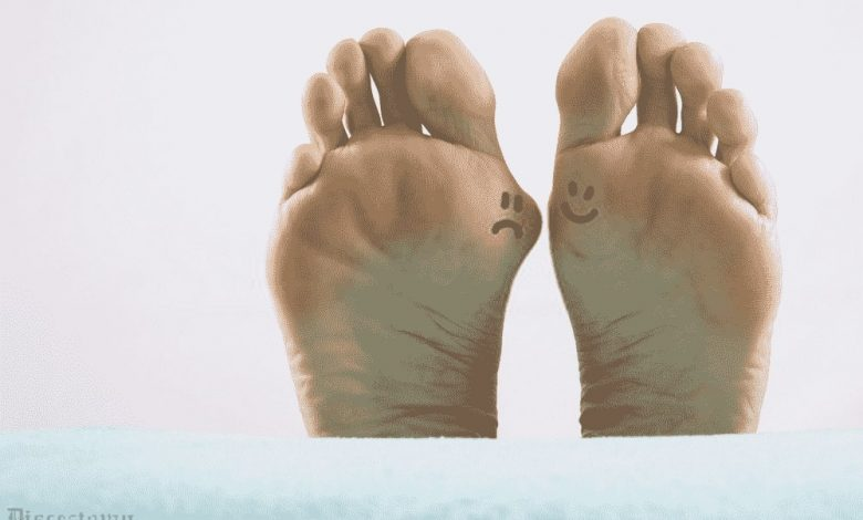 emotional reason for bunions