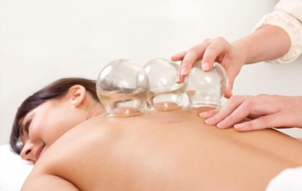 does work cupping therapy for fibro