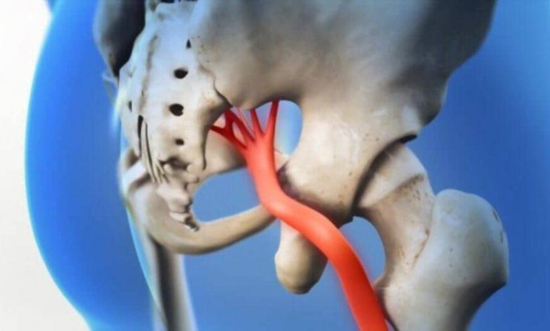 3d sciatic nerve